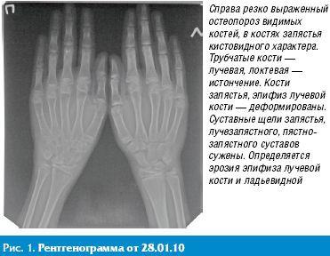Клинико-рентгенологическая динамика у пациента с системной формой ...