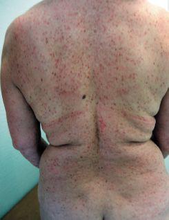 Мастоцитоз у детей лечение фото