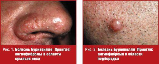 Болезнь Бурневилля–Прингля | #10/12 | Журнал «Лечащий врач