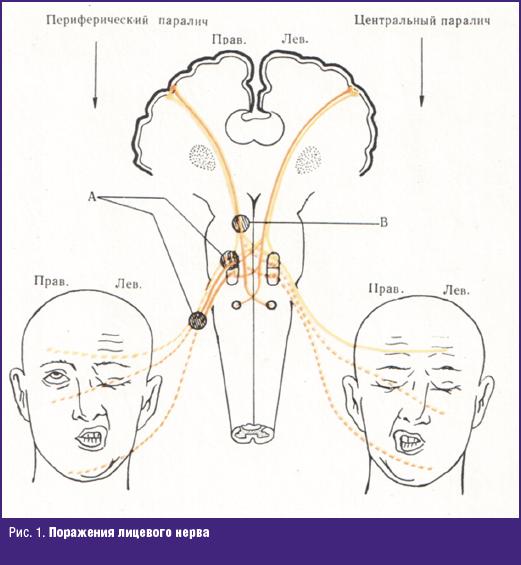 Поражения лицевого нерва