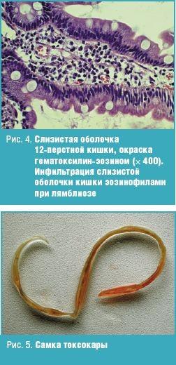 врач лечащий паразитов в организме человека