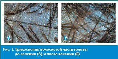 Трихоскопия волосистой части головы