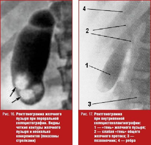 Холецистография фото