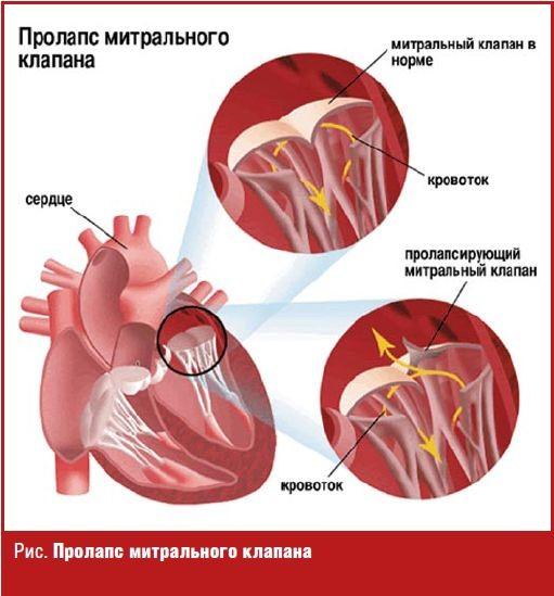 дисплазия сердца у детей