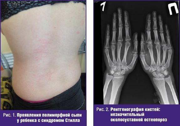 Ювенильный ревматоидный артрит у детей: синдром Стилла ...