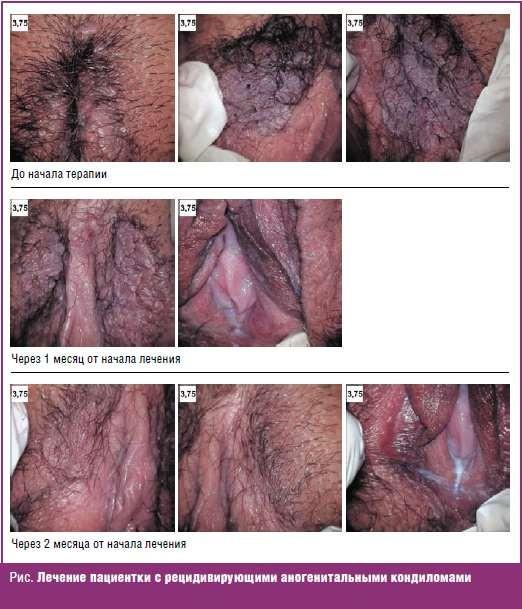 Лечение пациентки с рецидивирующими аногенитальными кондиломами