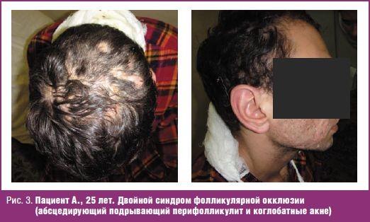 Абсцедирующий подрывающий фолликулит и перифолликулит Гоффмана и синдром фолликулярной окклюзии, #08