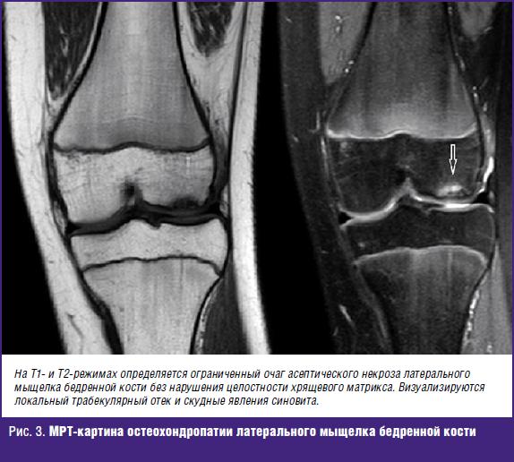 МРТ-картина остеохондропатии латерального мыщелка бедренной кости