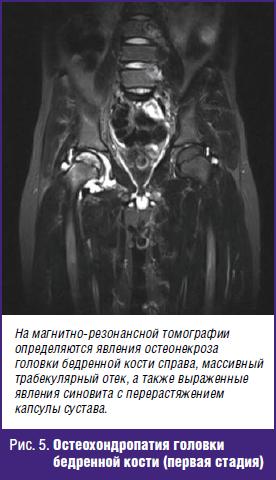 Остеохондропатия головки бедренной кости