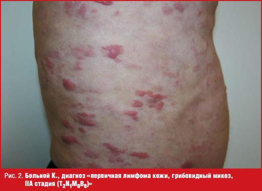 Больной К., диагноз «первичная лимфома кожи, грибовидный микоз