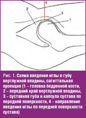 Схема введения иглы в губу вертлужной впадины, сагиттальная проекция