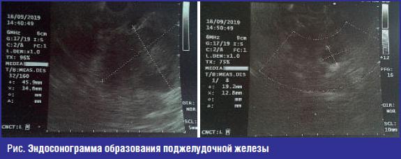 Эндосонограмма образования поджелудочной железы