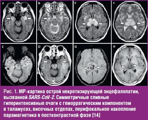 МР-картина острой некротизирующей энцефалопатии, вызванной SARS-CoV-2.
