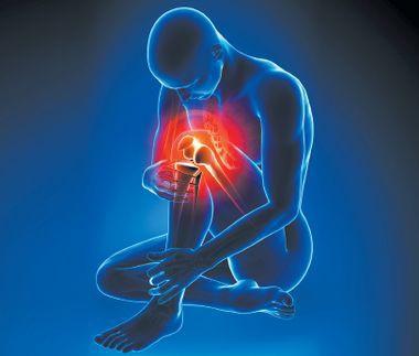 Болезнь депонирования кристаллов пирофосфата кальция (пирофосфатная артропатия)