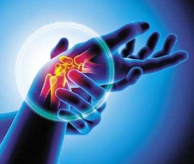 Положительный опыт применения препарата метотрексат у подростка с псориатическим артритом