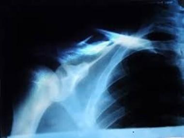 Приверженность лечению: влияние на качество жизни и риск повторных переломов у женщин в постменопаузе, перенесших остеопоротический перелом