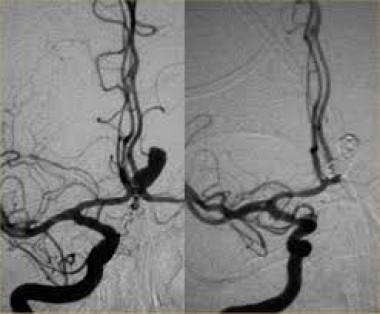 Методы лечения пульсирующих гематом и ложных аневризм периферических артерий после рентгенэндоваскулярных вмешательств