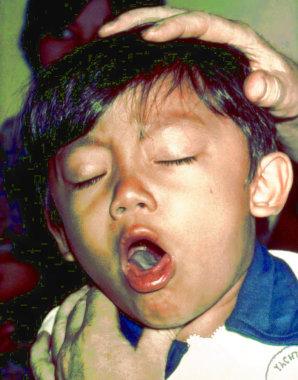 Диагностика и принципы лечения острых бронхитов на фоне дисплазии соединительной ткани у детей раннего возраста