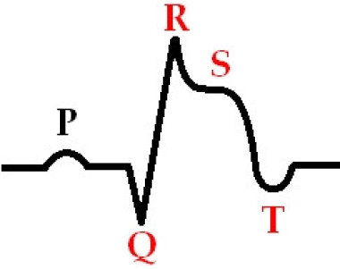 Ишемия миокарда на фоне пароксизма фибрилляции предсердий: прямое следствие аритмии или признак коронарного атеросклероза?