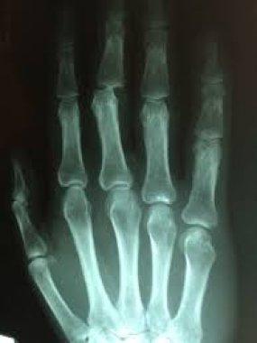 Хондропения в авангарде эпидемии остеоартрита: от старения суставов к клиническому манифесту болезни