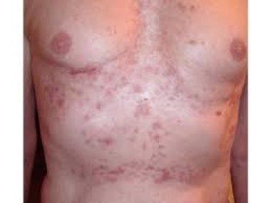 Медико-социальные проблемы ведения пациентов с хроническими дерматозами