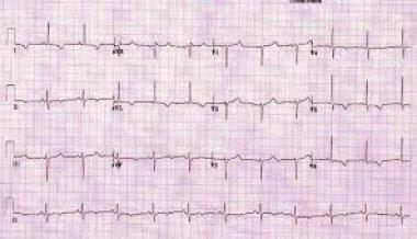 Проблема коррекции сочетанных кардиальных и метаболических нарушений в формате специальности «восстановительная медицина»