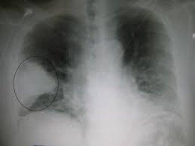 Современные особенности внебольничной пневмонии, вызванной <i>Clamydophyla pneumoniae</i>