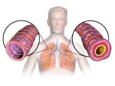 Неатопическая астма. Распространенность, клиника, лечение