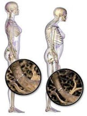 Опросник QUALEFFO-41 как критерий оценки эффективности нового комплекса лечебной физкультуры для больных с остеопоретическими переломами позвонков
