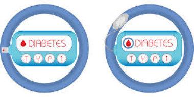 Современный взгляд на проблему диабетической нефропатии у детей и подростков с сахарным диабетом 1 типа: роль ренин-ангиотензин-альдостероновой систем