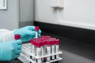 Современное состояние проблемы папилломавирусной инфекции