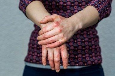 Полиморбидность в дерматологии: поздняя диагностика и последствия
