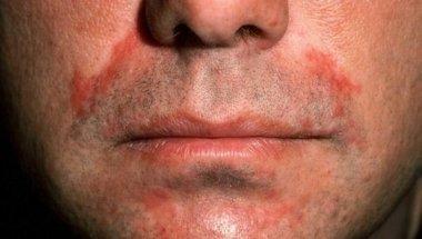 Себорейный дерматит: патогенетические аспекты, клинические формы и терапия больных
