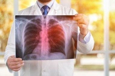 Внебольничная пневмония, коротко о главном. Что важно знать практикующему врачу. По материалам Конгресса «Человек и лекарство» и III Саммита пульмонол