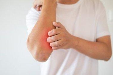 Тактика наружной терапии больных атопическим дерматитом с применением различных лекарственных форм топического глюкокортикостероида
