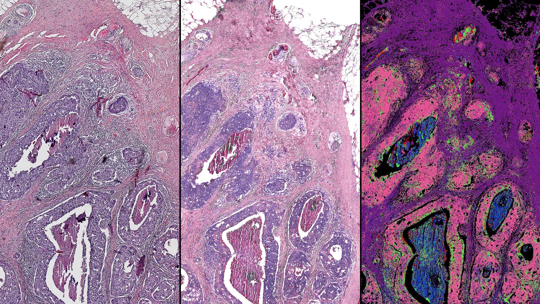 Гибридная микроскопия – новый шаг в развитии цифровой биопсии