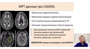 Видео. Быстропрогрессирующие деменции