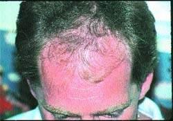 Андрогенная алопеция у женщин: что это такое, фото, симптомы и основные причины андрогенетического выпадения волос