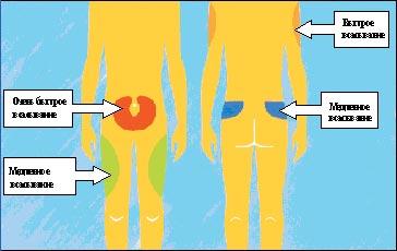 Чем плохо колоть инсулин в мышцу