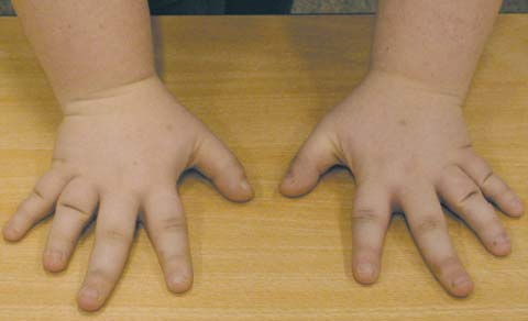 Фото 3. Брахидактилия при псевдогипопаратиреозе