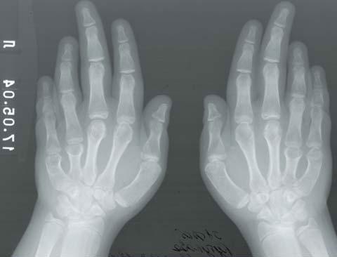 Фото 4. Двустороннее укорочение 4‑й и 5‑й пястных и плюсневых костей при псевдогипопаратиреозе