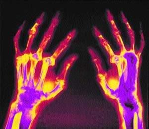 Дебют ревматоидного артрита симптомы -