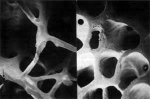 Диагностика остеопороза - виды анализов и исследований