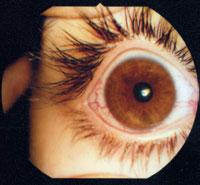 Рис. 1. Полнокровие сосудов при переутомлении глаза