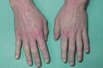 Рис. 2.Атопический дерматит