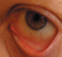 Рис. 3. Здоровый глаз— гладкая бледная конъюнктива (слизистая, покрывающая глазное яблоко и внутреннюю поверхность века) с единичными сосудами
