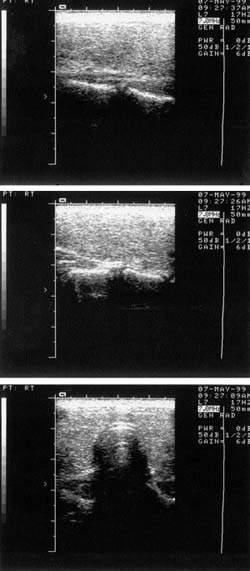 Лечение тиреоидита хашимото у детей эндонорм
