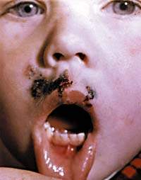 герпетический стоматит у детей фото во рту лечение