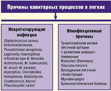 Рис. 2. Причины кавитарных процессов в легких