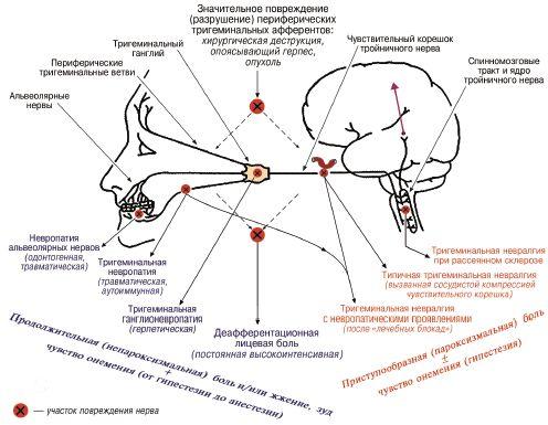 Схема поражения тройничного